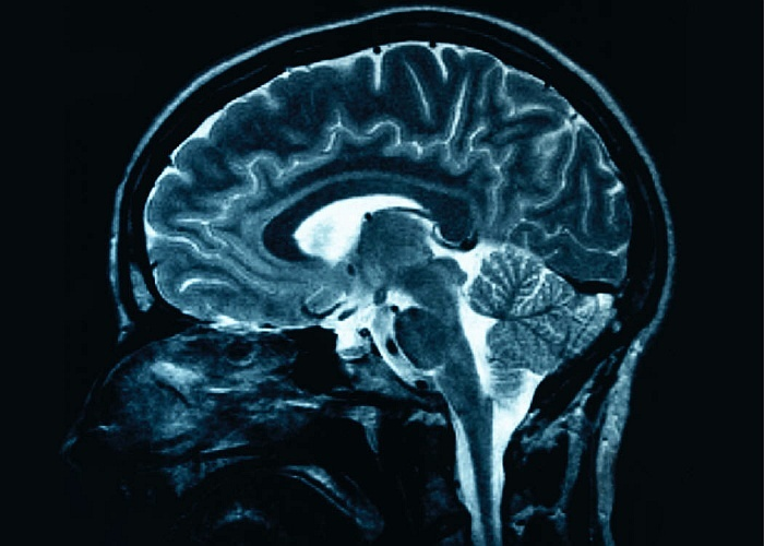 Uct great minds five exemplary academics in the neurosciences uct an mri scan of a human brain ccuart Image collections