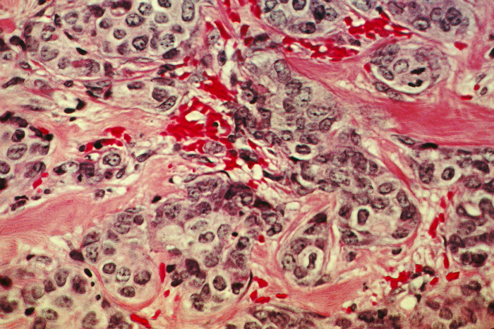 "A histological slide of cancerous breast tissue. The pink ""river ways"" are normal connective tissue; the dark grains are cancer cells."