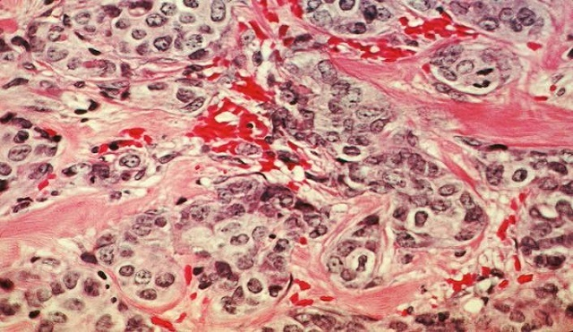 A histological slide of cancerous breast tissue.