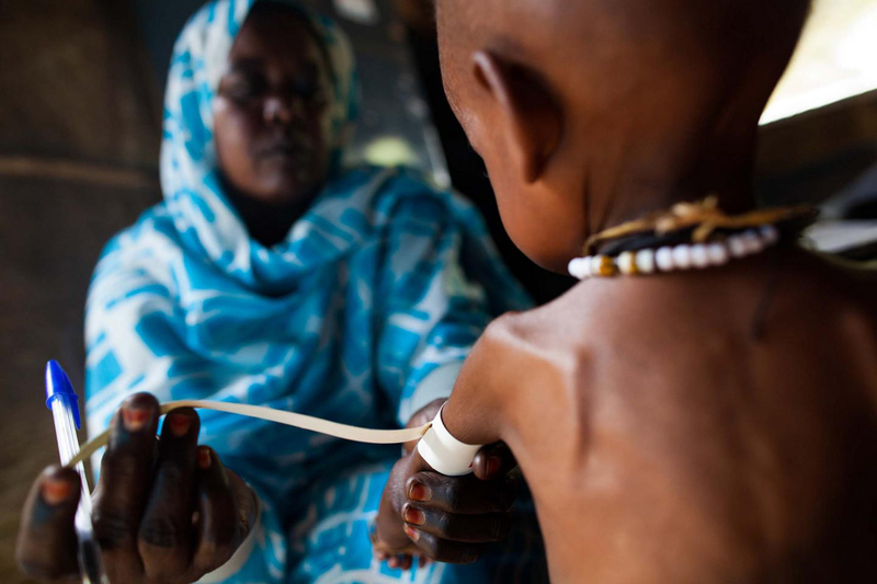 Severely malnourished children are at high risk of contracting malaria and dying from it as they are unable to absorb antimalarial drugs effectively.