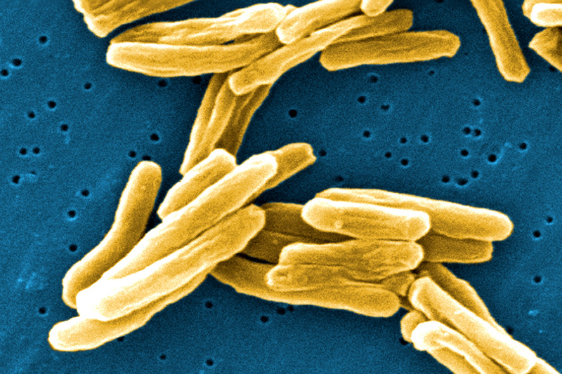 Mycobacterium tuberculosis – the bacterium that causes tuberculosis – under the microscope. UCT has been awarded seed funding by Imperial College London and MIT to better understand how the disease spreads.