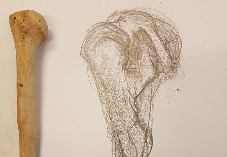 An observation of the head and neck of the humerus.