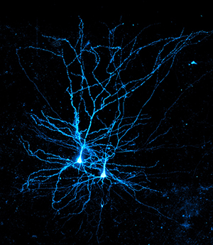 A blue-stained human pyramidal neuron, a type of large neuron named for its triangular cell body.